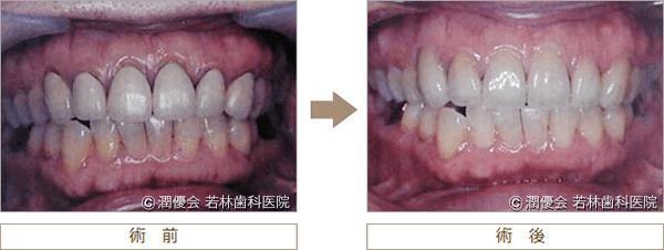 前歯の審美治療術前・術後