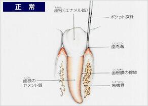 健康な歯の人1