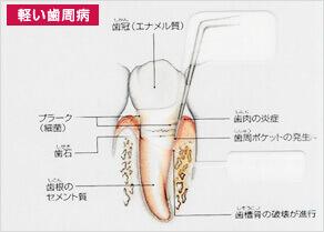 軽い歯周病の人1