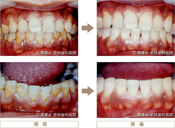 歯周病治療の術前・術後