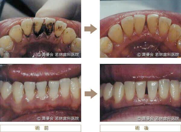 歯石除去の術前・術後