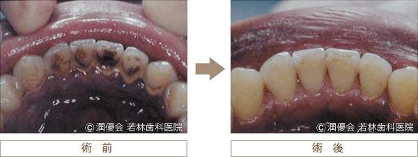 歯石・タバコのヤニ除去の術前・術後