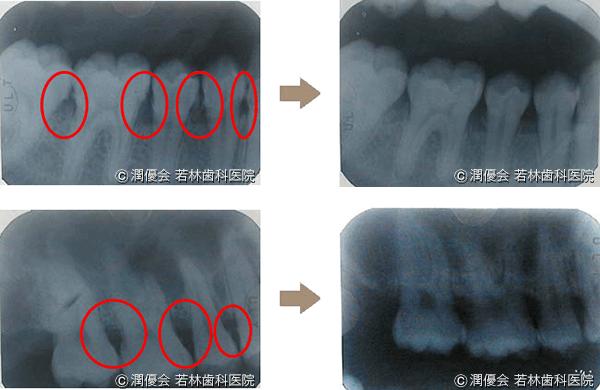 歯周病治療の術前・術後2