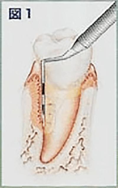 歯周ポケット測定の図