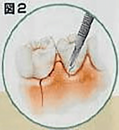 歯肉切開の図