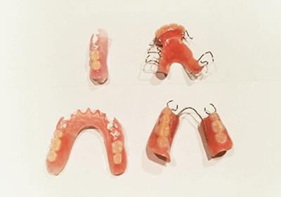 メタルフリー義歯とクラスプ義歯
