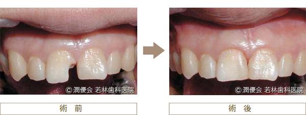 虫歯治療術前・術後の写真4