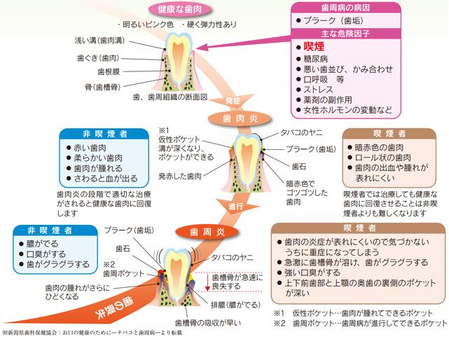 新潟県歯科保険協会 お口の健康のために-タバコと歯周病-より転載