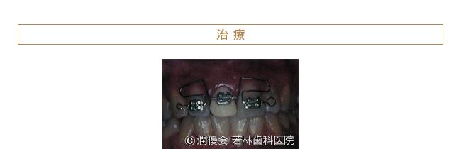 治療時の症例写真1