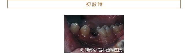 初診時の症例写真2