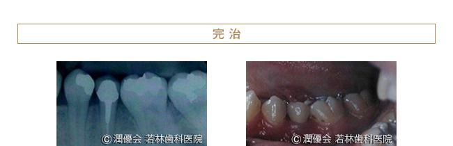 完治時のレントゲン・症例写真