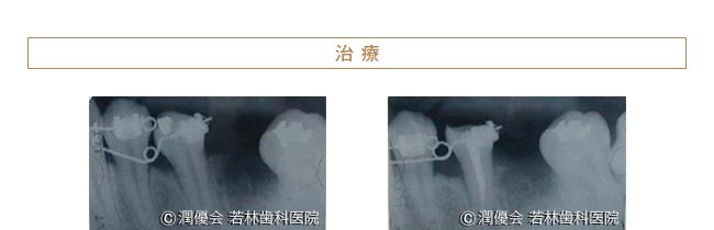 治療時のレントゲン写真1