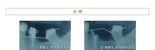治療時のレントゲン写真2