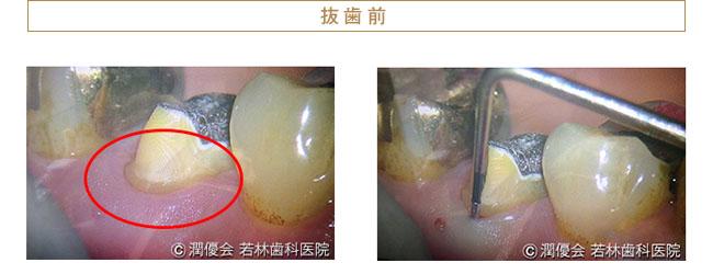 歯根破折による抜歯前1