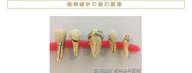 歯根破折の歯の画像