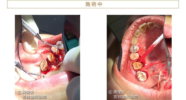 歯根分割施術中の画像1