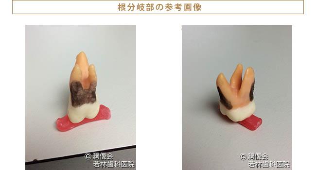 歯根分割参考画像