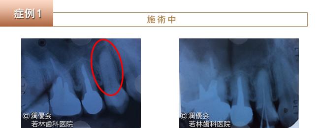 根管治療レントゲン写真1