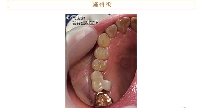歯根分割施術後の画像