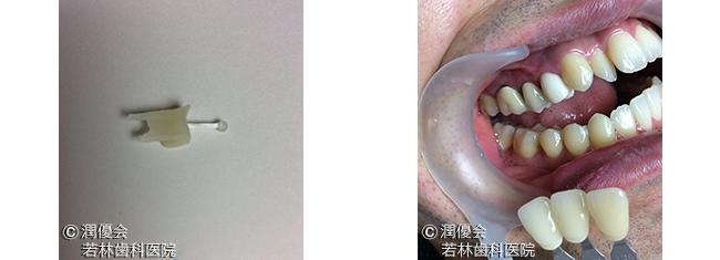 ファイバーコアと仮歯