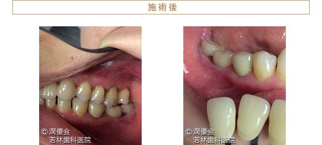インプラント施術後口腔内写真