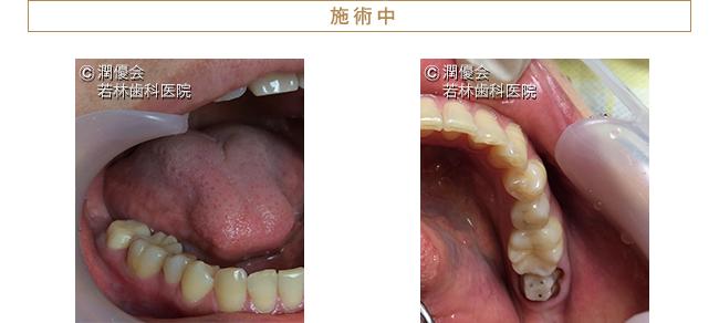 審美治療施術中の口腔内写真