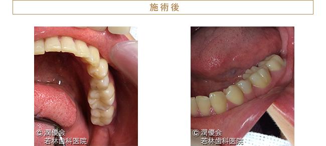 審美治療施術後の口腔内写真