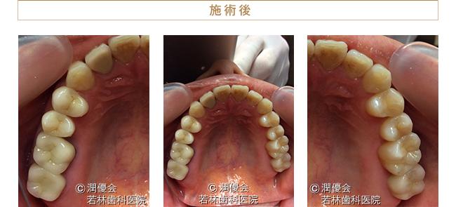 オールセラミック施術後の口腔内写真