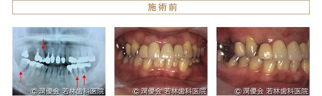総合治療施術前のレントゲン及び口腔内写真1