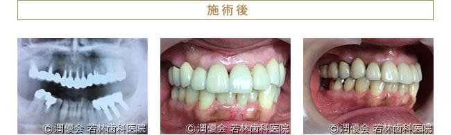 総合治療施術後のレントゲン及び口腔内写真1