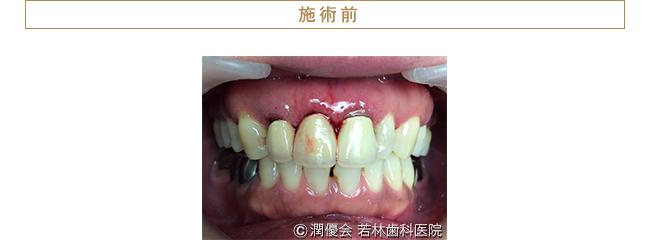 歯周病治療・審美治療前の口腔内写真
