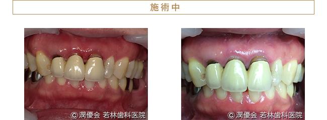 歯周病治療中の口腔内写真