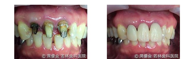 審美病治療中の口腔内写真1