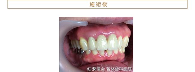 歯周病治療・審美治療後の口腔内写真