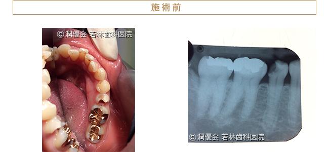 初診時の口腔内とレントゲン写真