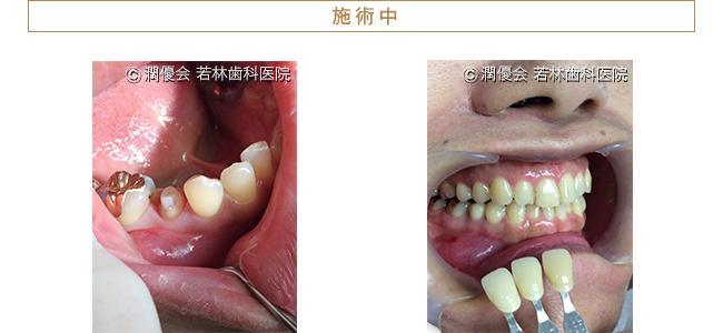施術中の口腔内写真1