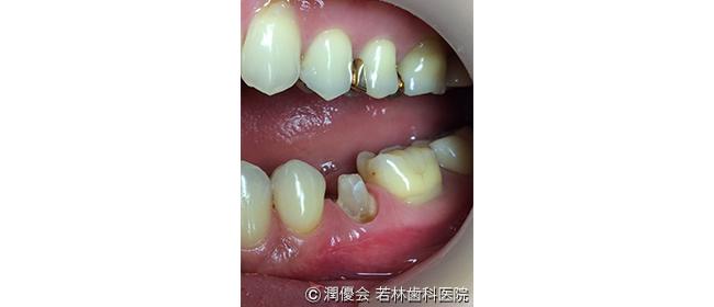 治療中の口腔内写真