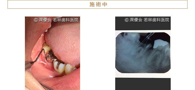 治療中の口腔内・レントゲン写真1