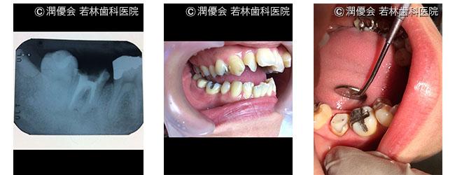 治療中の口腔内・レントゲン写真2