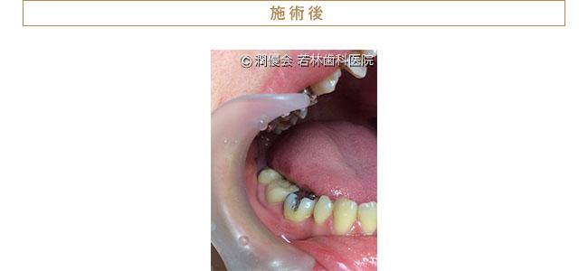施術後の口腔内写真