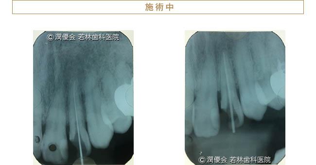 治療中のレントゲン写真1