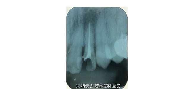 治療中の口腔内写真2