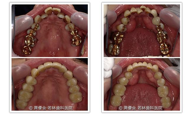 施術前後の比較写真3