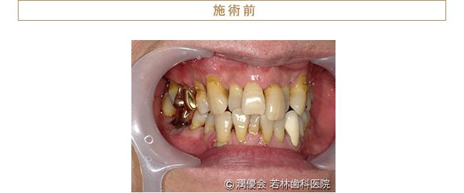 施術前口腔内写真1
