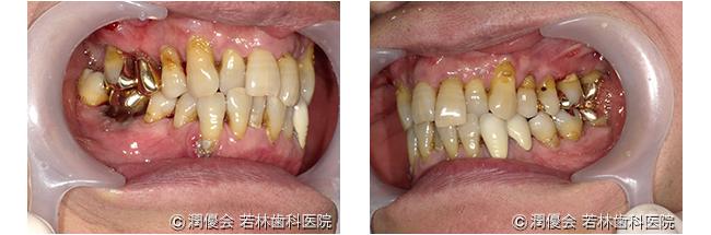 施術前口腔内写真2