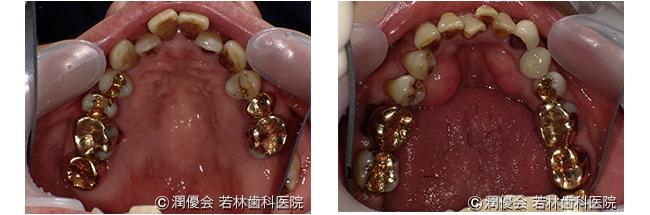 施術前口腔内写真3