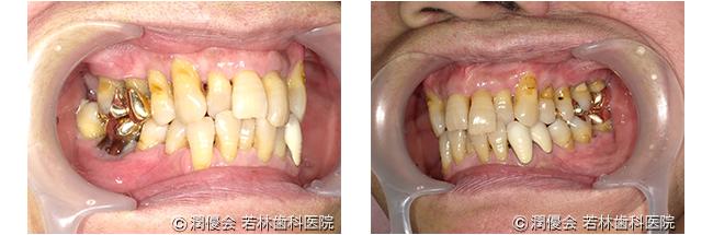 施術中の口腔内写真2