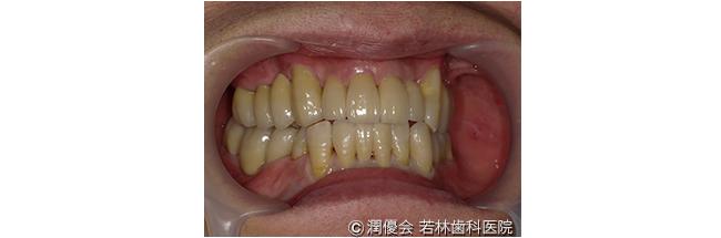 施術後の口腔内写真1