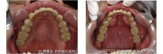 施術後の口腔内写真3