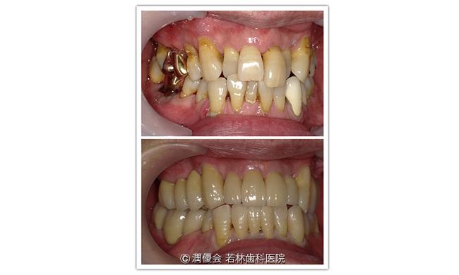 施術前後の比較写真1